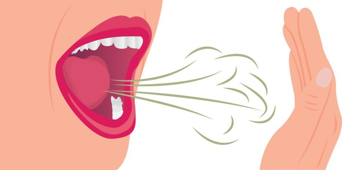 Bad smell air from a mouth. Oral hygiene concept vector illustration on a white background.