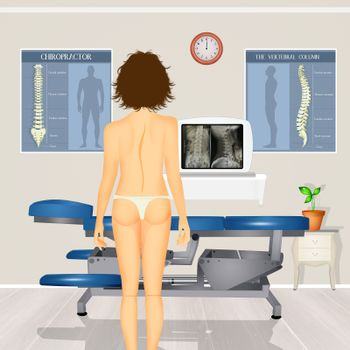 illustration of girl with scoliosis problem