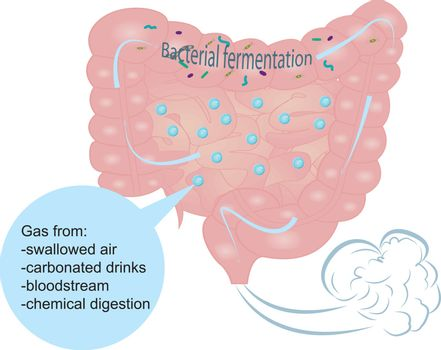 Bloating and excess gas in intestine