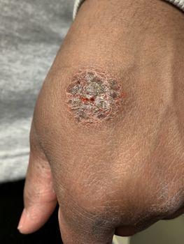 Nummular eczema or nummular dermatitis on african american hand. Round lesion on skin of black hand. Dermatology disorder