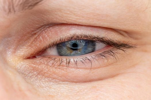 Middle age woman narrowed blue-gray eye macro. Caucasian ethnicity.