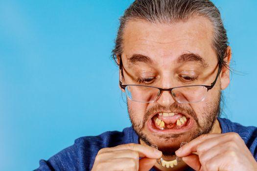 Removable partial temporary partial denture