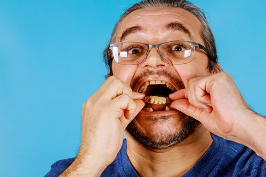 Man's hand putting dental crowns in teeth