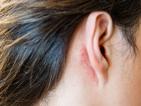 Irritation on the skin behind the ear. Man with flaky skin. Alle