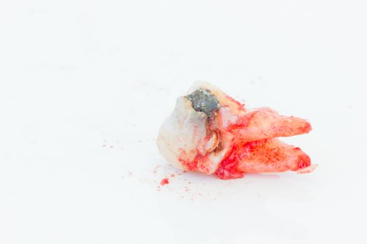 Extraction of decayed tooth on white background.