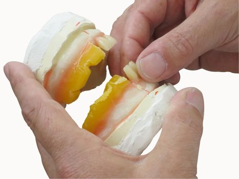 specialized hands that shape a plaster denture