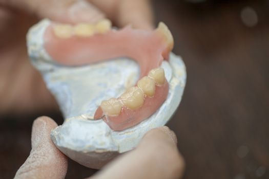 Dental technician check his work of denture prothesis in dental