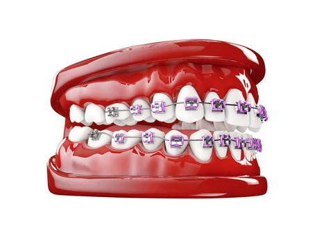 Teeth with brackets, Dental care concept 3d illustration.