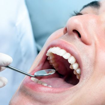 Macro close up of young man with open mouth showing healthy white teeth. Dentist hand checking teeth with mouth mirror.
