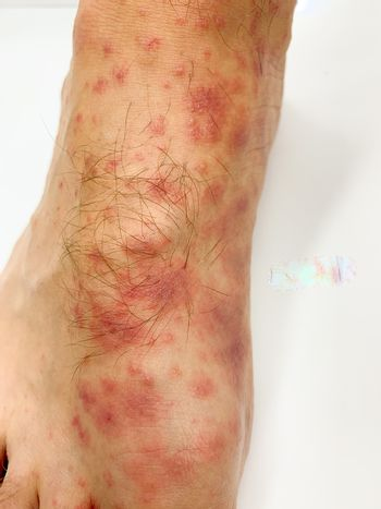 Close up of male's foot and toes with red rash desease on a white background. Stock image.