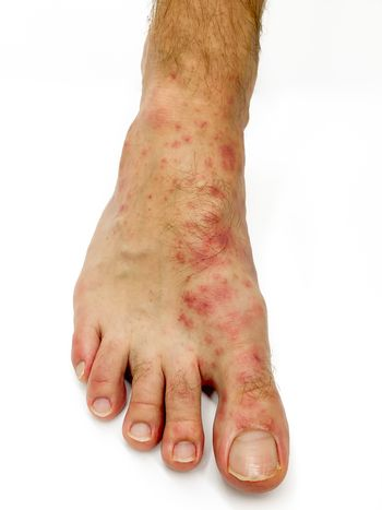 Close up of male's foot and toes with red rash desease isolated on a white background. Stock image.
