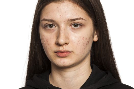 teenage girl with problematic skin