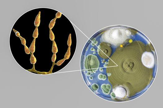 Mold Alternaria alternata, illustration and photo of colony on nutrient medium