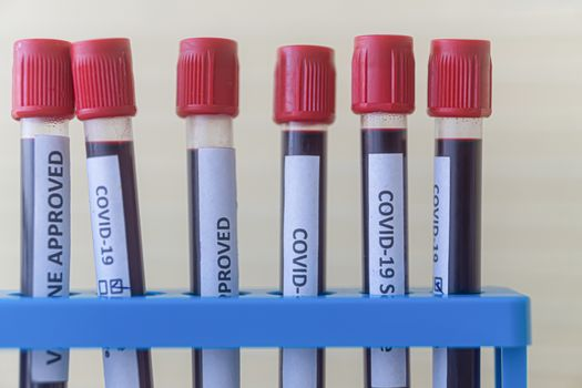 test tube with blood for 2019-nCoV analyzing. Novel  covid19 blood test Concept.