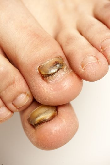 fungal infections of the nails of the feet