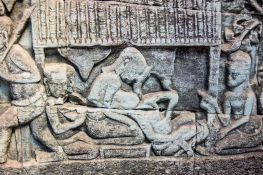 Ancient Khmer carving of childbirth