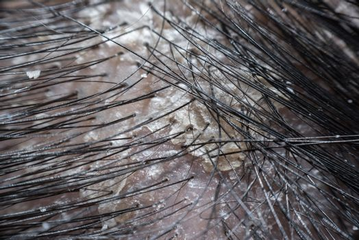 Hair scalp with dandruff and scaly from psoriasis