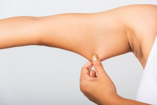 woman pulling excess fat on her under arm, problem armpit skin
