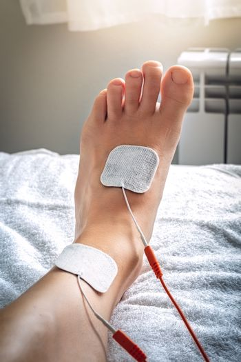 Foot on stretcher subjected to a medical treatment of electro st