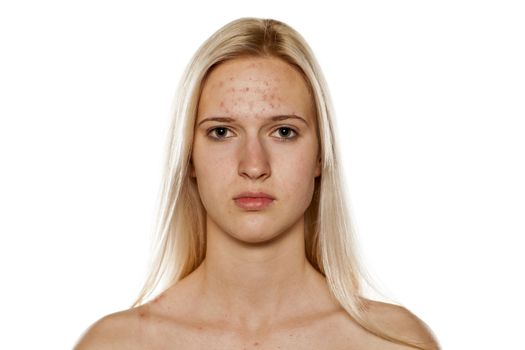 Girl with problematic skin