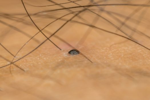 Macro of dry skin asian human with black hairy