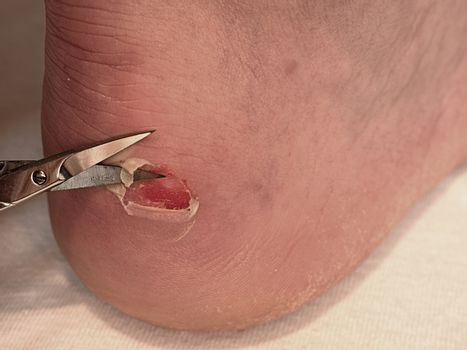 Small bended scissors cut skin at  cracked blister on man heel. Painful place with torn skin,  bloody and wetted wound with skin tresses.