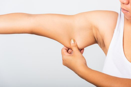 woman pulling excess fat on her under arm