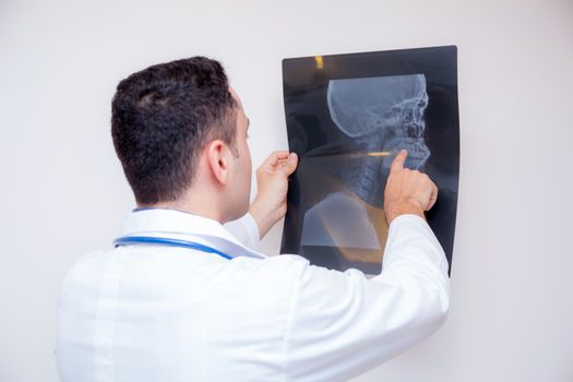 healthcare with roentgen - people and medicine concept - male do