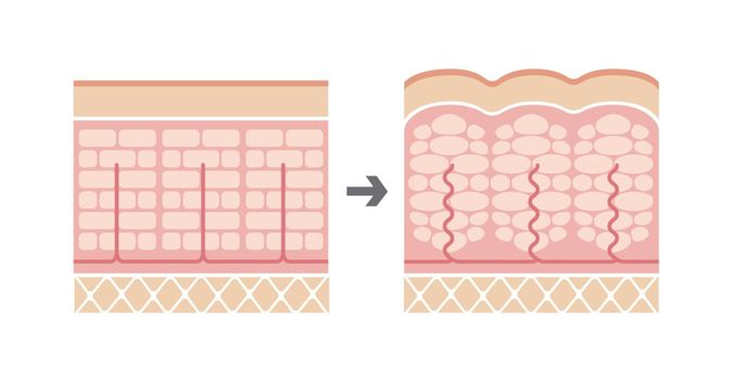 Comparative illustration of normal skin and cellulite's skin