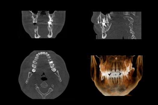 Set of MRI scanner slices of dental part of adult human male scull with multiple problems on white background.