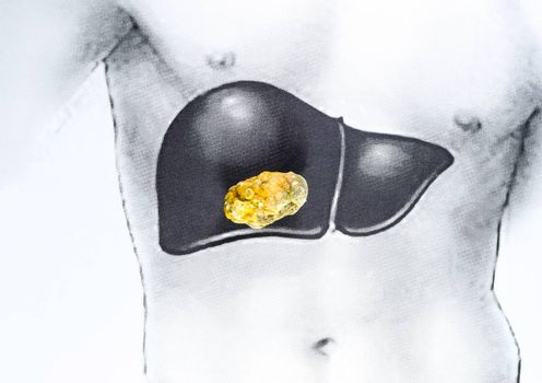stone in the liver, a schematic image, a large gallstone, the result of gallstones.