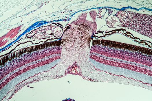 Optic nerve of the fish in the eye 200x