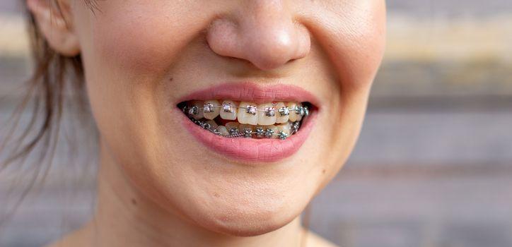 brasket system in smiling mouth, macro photo teeth, close-up lips, macro shot