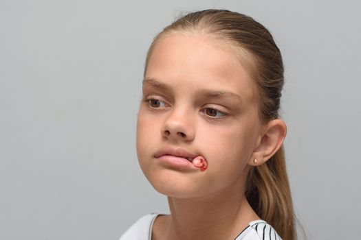 A bloody swab sticks out of the mouth of a ten-year-old girl after tooth extraction