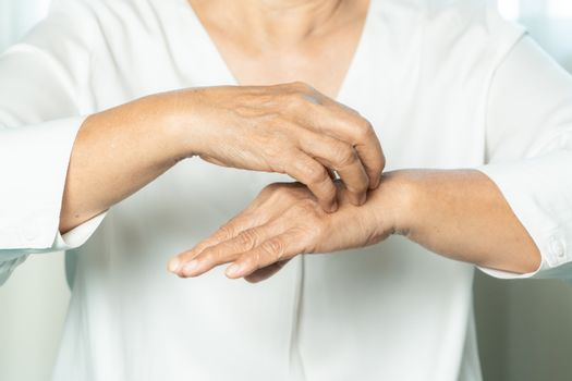 senior women scratch the itch on eczema hand, healthcare and med