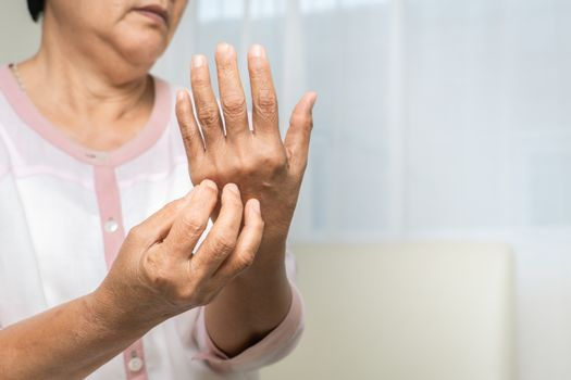senior women scratch hand the itch on eczema arm, healthcare and