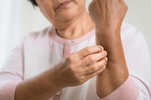 senior women scratch arm the itch on eczema arm, healthcare and