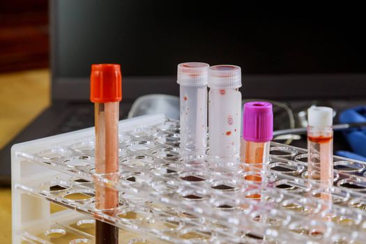 A blood sample with in laboratory to check the sampling tube placed on the desk