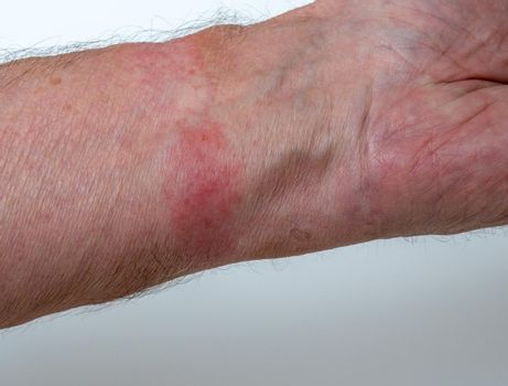 Contact allergy skin irritation from wearing a watch strap