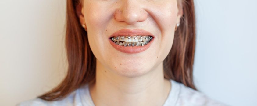 Braces in the smiling mouth of a girl. Close-up photos of teeth and lips. Smooth teeth from braces. On the teeth of elastic bands for tightening teeth. Photo on a light solid background.