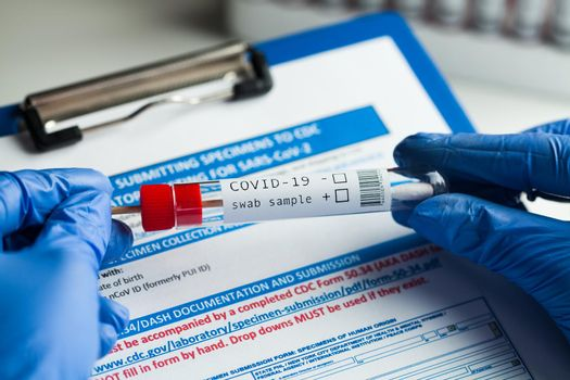 rt-PCR COVID-19 virus disease diagnostic test,lab technician wearing blue protective gloves holding test tube with swabbing stick,swab sample equipment kit & CDC form specimen submitting guidelines