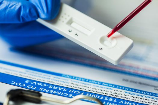Medical laboratory technician placing blood sample specimen on quick rapid diagnostic test using pipette,Coronavirus infected patient antibodies diagnosis,UK NHS SARS-CoV-2 point of care fast testing