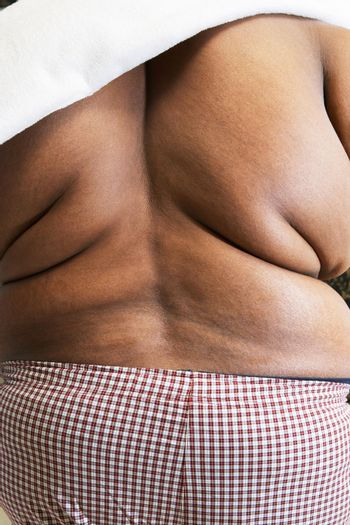 Overweight man with bare back