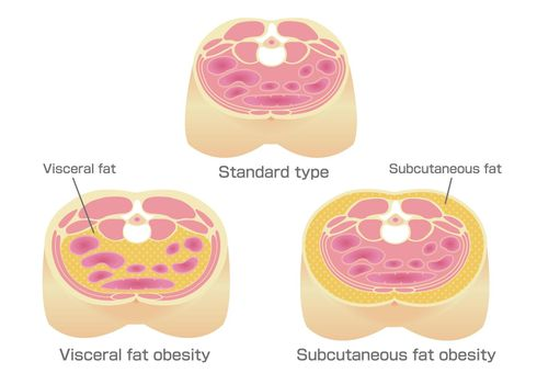 Type of obesity illustration (Japanese). Abdominal sectional View (visceral fat , subcutaneous fat).