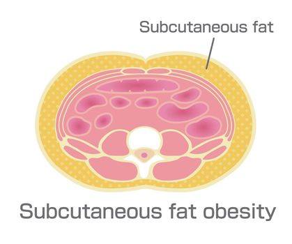 Type of obesity illustration (Japanese) . Abdominal sectional View (subcutaneous fat).