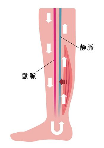 Cause of swelling(edema) of the legs. Decreased blood flow due to muscle weakness