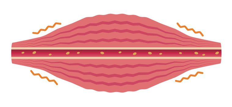Healthy muscle flat illustration .section of muscle and vessel.