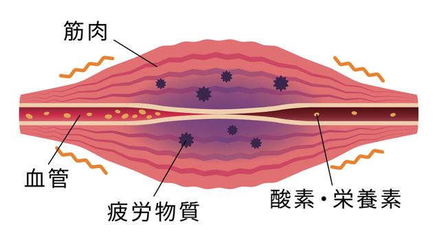 Fatigue factors accumulate . Flat illustration of muscle and vessel.