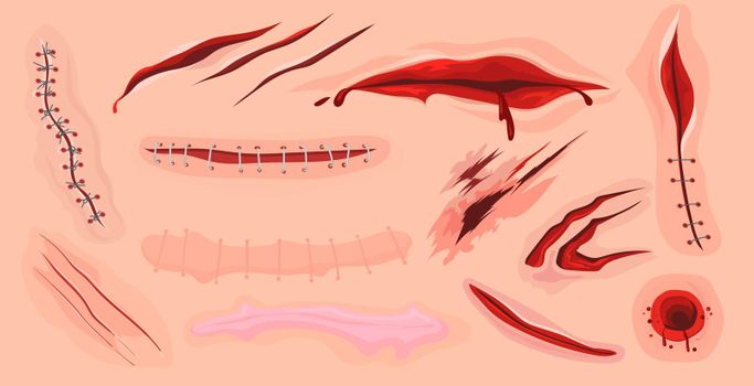 Human skin scars, cuts and bloody wounds flat set for web design