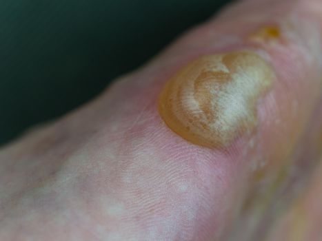Big blister on foot from Pompholyx eczema